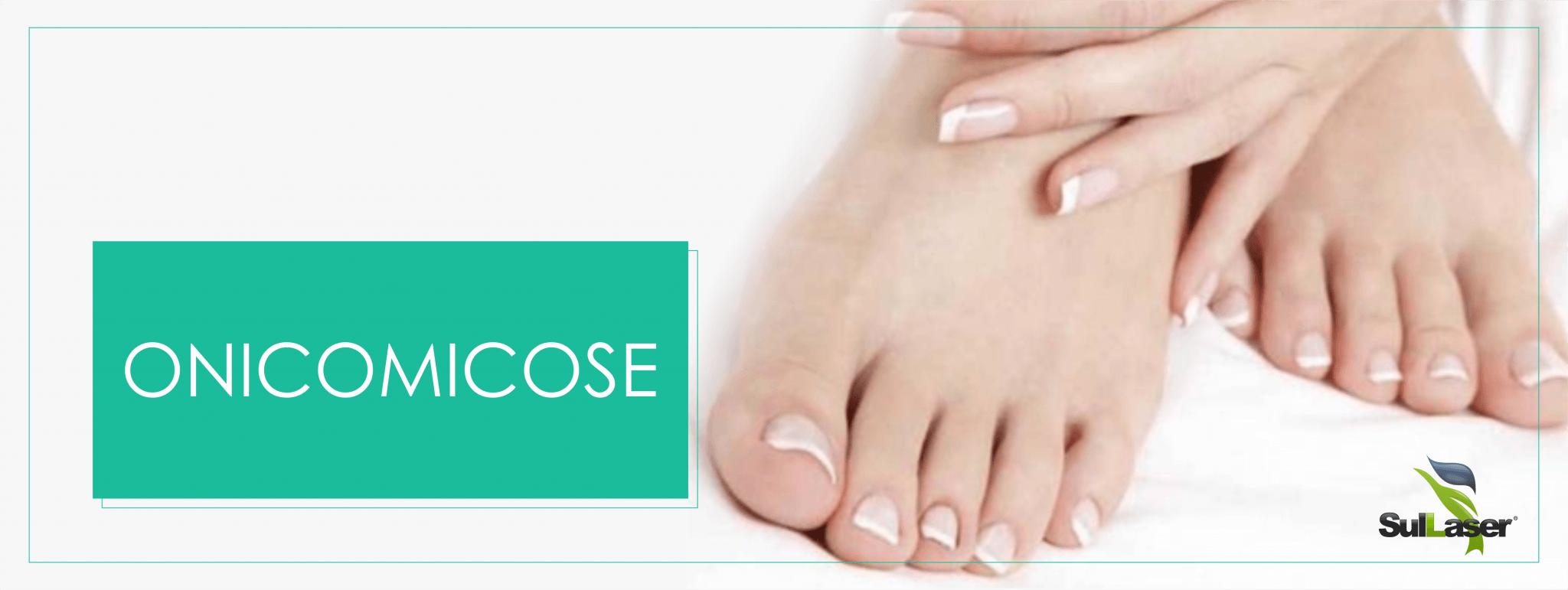 Você sabia que as Brasileiras são as maiores vítimas de fungos em unhas, a chamada Oniomicose?