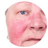 ETHEREA-MX® IPLSQ® Lesão Vascular no Rosto