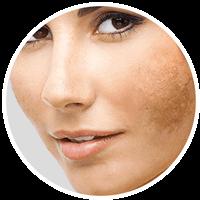 ETHEREA-MX® IPLSQ® Lesões Pigmentares