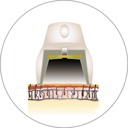 Light Sheer Duet - handpiece-hs